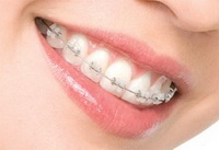 Braces Ortho